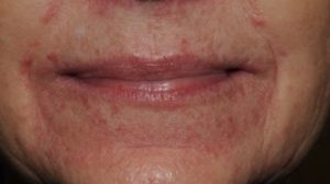 61-Year-Old Female With 5-Day History of Sudden Pruritic Rash Around Mouth and Eyelids