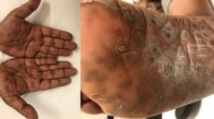 28-Year-Old Female With Pruritic Rash Involving Palms and Soles