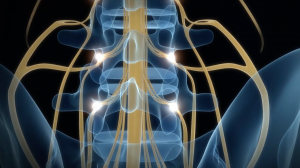 Addressing Chronic Pain Using Advanced Neuromodulation Techniques