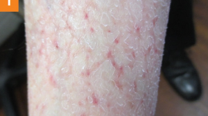 65-Year-Old Female With Pruritic, Dry, Scaly Skin on Lower Legs