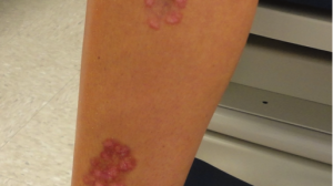 22-Year-Old Female With Lobular Plaques on Shin