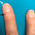 76-Year-Old Woman With Papule on Dorsum of Left Third Digit