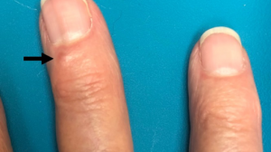 Click to View 76-Year-Old Woman With Papule on Dorsum of Left Third Digit