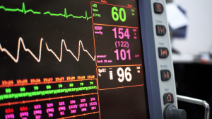 Artificial Intelligence for Assessing Patients Under Critical Care