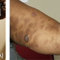51-Year-Old Woman With Severe Hyperpigmentation in Skin Plaques