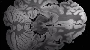 Is This the Highest Resolution MRI Scan of the Human Brain Ever?