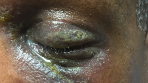 49-Year-Old Male with Bilateral Eyelid Erythema