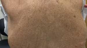 78-Year-Old Male With History of Multiple Nonmelanoma Skin Cancers