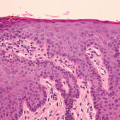 90-Year-Old Female with Lung Carcinoma