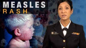 Measles Clinical Features and Diagnosis