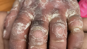 Click to View 43-Day-Old Female with Persistent Dry Rash