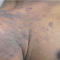 59-Year-Old Man with Generalized Body Rash