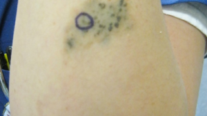 Click to View 34-Year-Old Woman With Changing Birthmark
