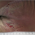 78-Year-Old Male With Pruritic Rash