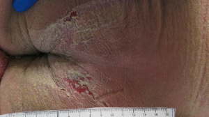 Click to View 78-Year-Old Male With Pruritic Rash