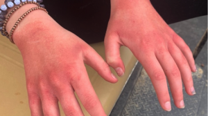 Irritant Contact Dermatitis Caused by Hand Sanitizer Use and Handwashing During the COVID-19 Pandemic